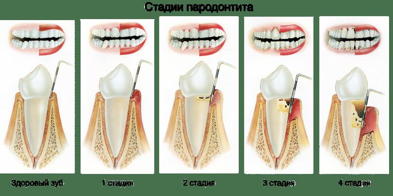 4 стадии развития пародонтита