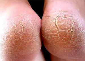 причины и лечение трещин на пятках