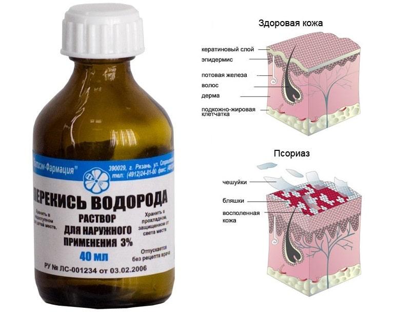 Лечение псориаза перекисью водорода