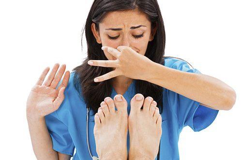 что делать при потливости ног?