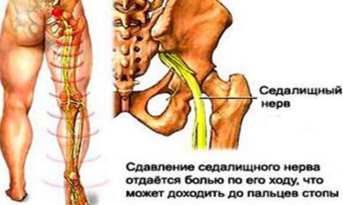 Обезболивающие мази для суставов ног