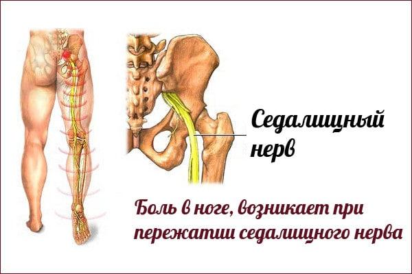 боль в ноге при защемлении седалищного нерва