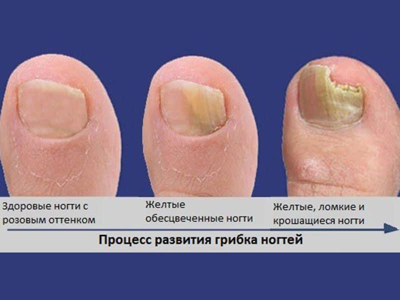 Как распарить ногти на ногах при грибке — Сайт о грибке ногтя