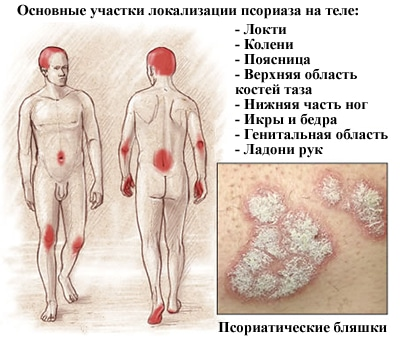 карта псориаза на теле