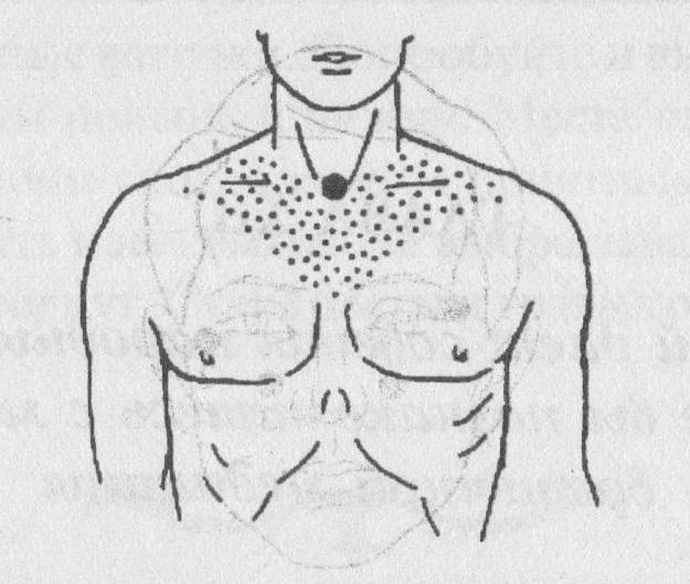 рефлексотерапия при астме