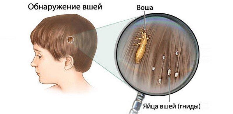 Обнаружение вшей и гнид