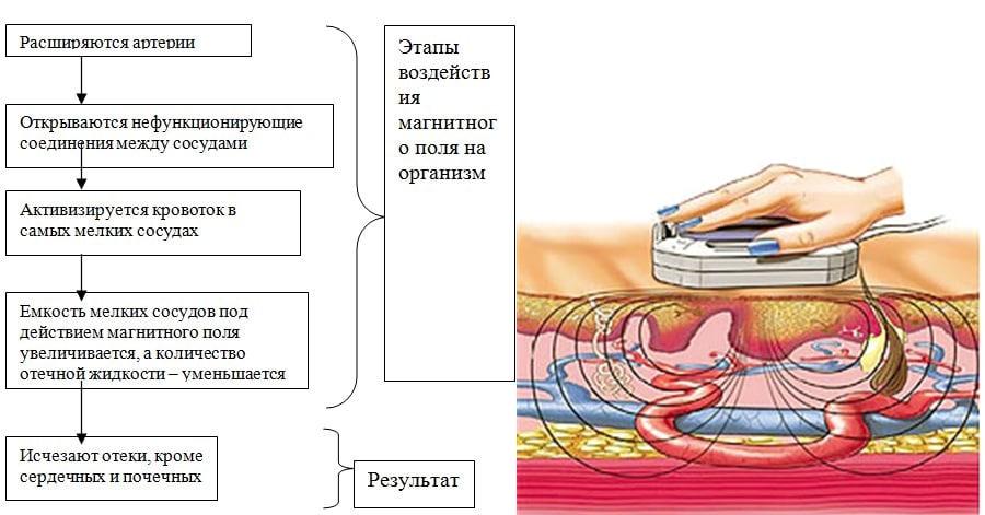 принцип магнитотерапии