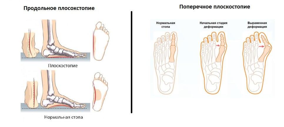 различия плоскостопий