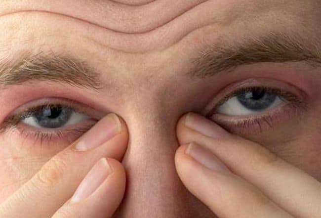 болит голова в области глаз