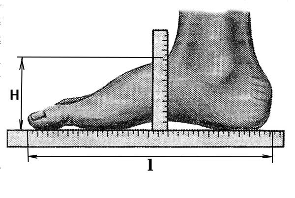 Лечение плоскостопия в домашних условиях у взрослых