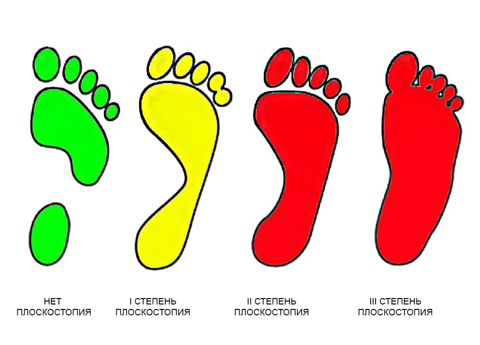 плантограмма стопы