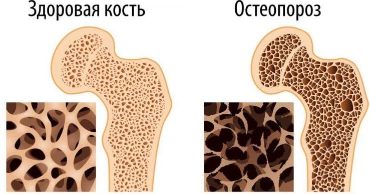 что такое остеопороз кости