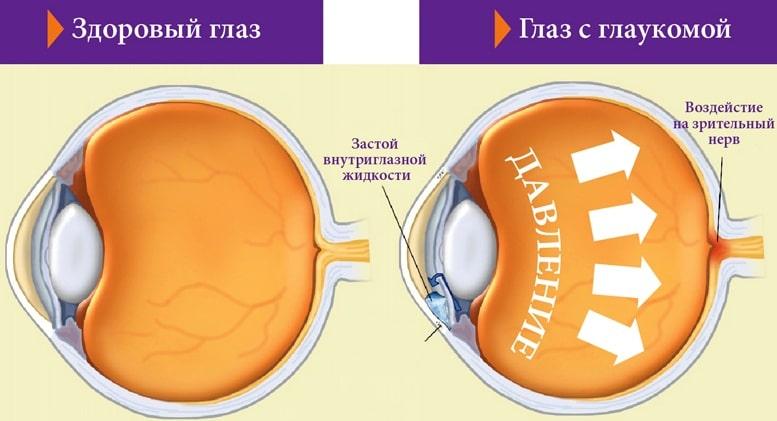 как лечить глаукому глаза