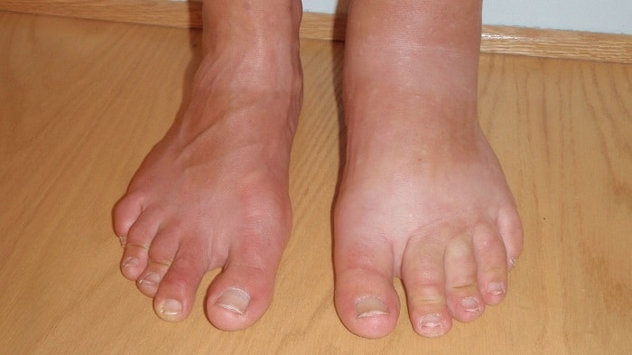 Как лечить шишку на ноге возле большого пальца в домашних условиях, почему она появляется?
