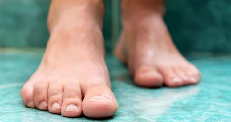 Шишки на большом пальце ноги