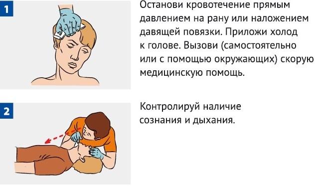 ушиб головы