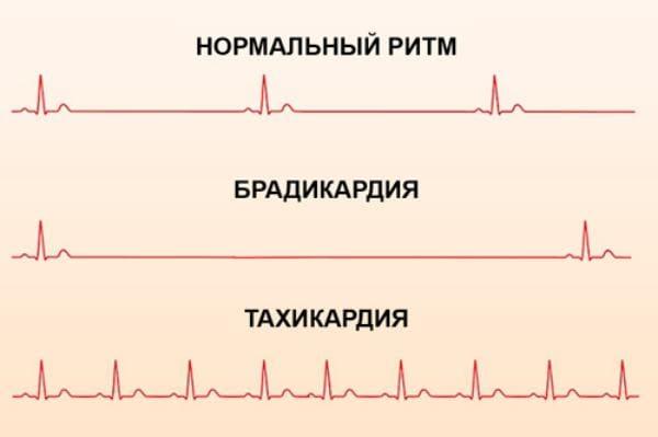 отличие сердечных ритмов
