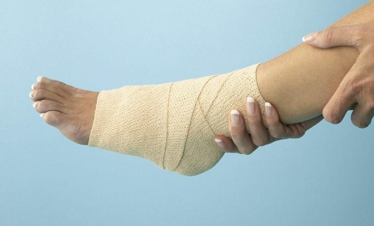 повреждение связок голеностопного сустава лечение в домашних условиях
