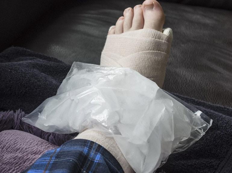 Что делать при сильном ушибе ноги в домашних условиях