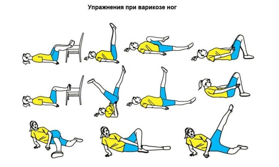 гимнастика при тромбофлебите