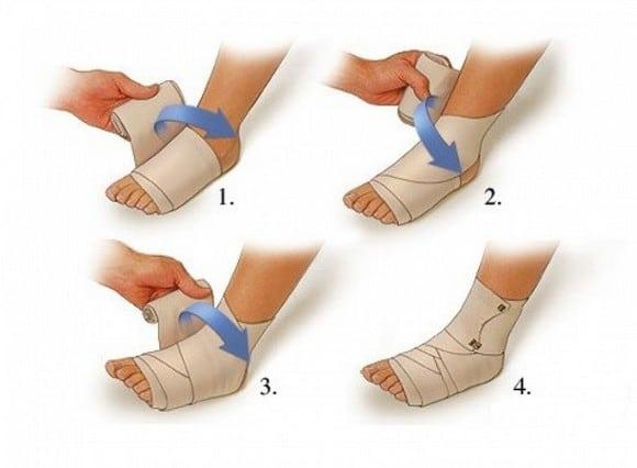 Растяжение и перенапряжение связок голеностопного сустава