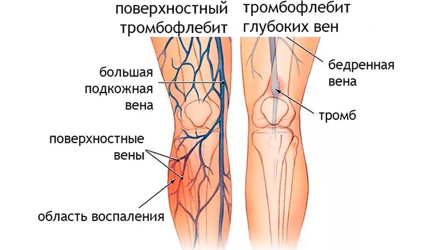 поверхностный тромбофлебит