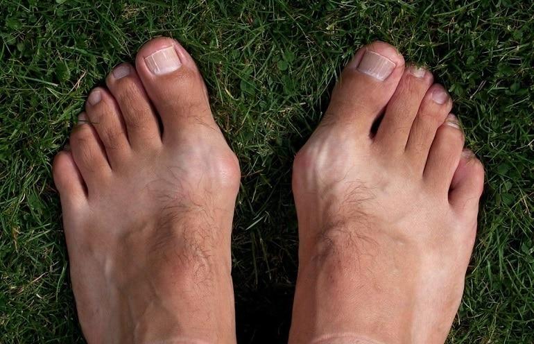 лечение косточки на ноге