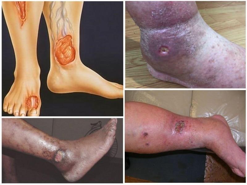 Чем лечить трофическую язву на ноге в домашних условиях