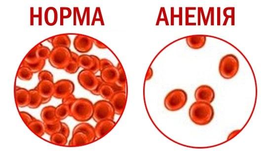 анемия под микроскопом