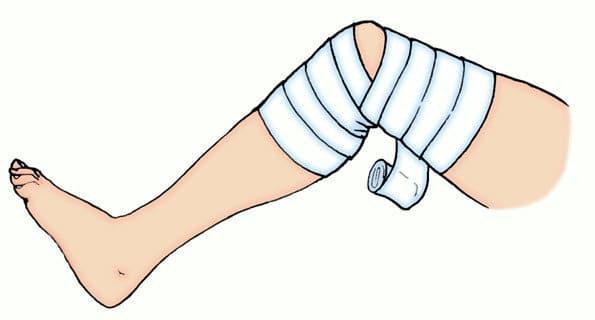 как бинтовать колено при варикозной болезни вен