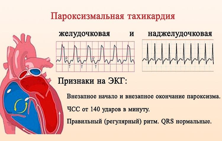 пароксизмальная тахикардия