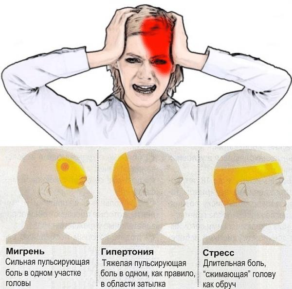 как отличить мигрень от гипертонии