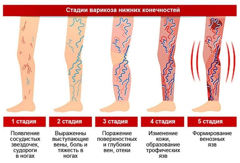 стадии варикоза нижних конечностей