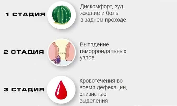 Симптомы в зависимости от стадии геморроя