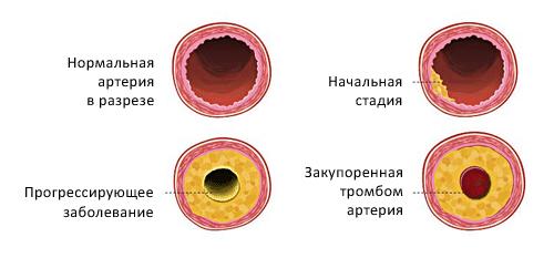 Как понизить холестерин в крови народными средствами в домашних условиях