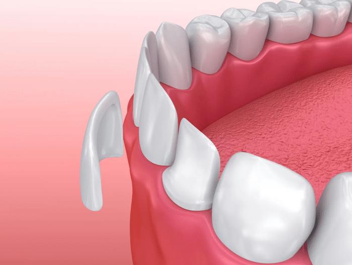 Что делать если раскололся пополам зуб?
