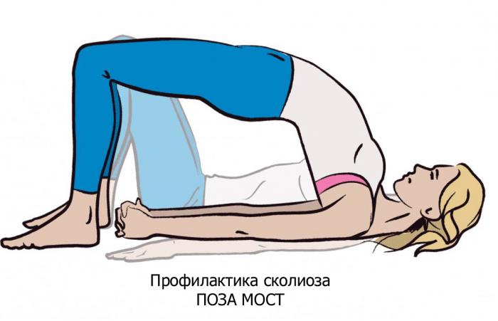 """Поза """"Мост"""" для профилактики сколиоза"""