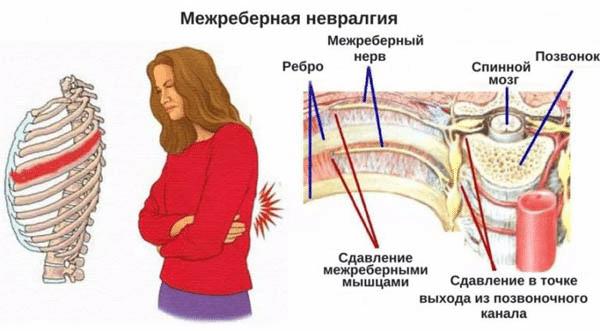 Лечение межреберной невралгии в домашних условиях: медикаменты, массаж и народные средства