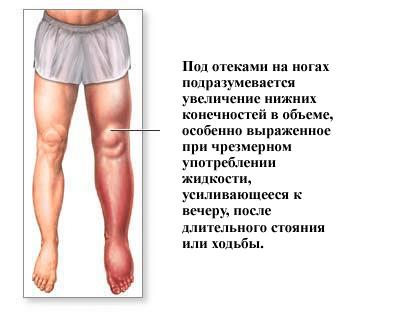 Причины и лечение отечности ног у взрослых людей