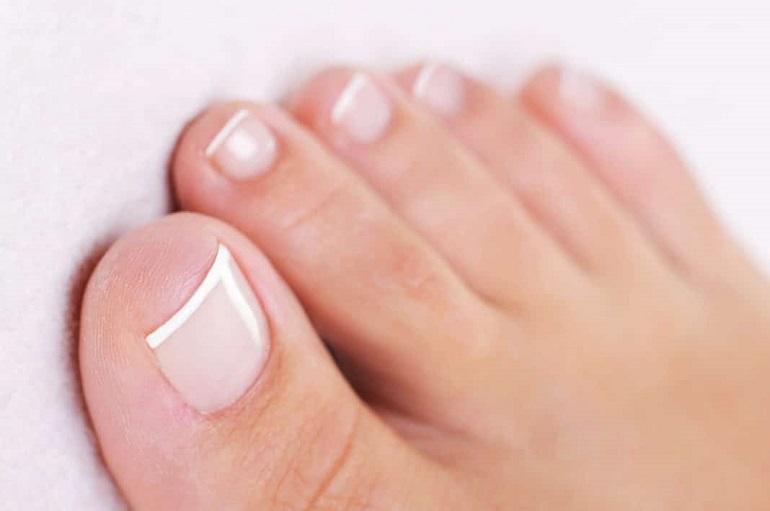 как избавиться от грибка ногтя