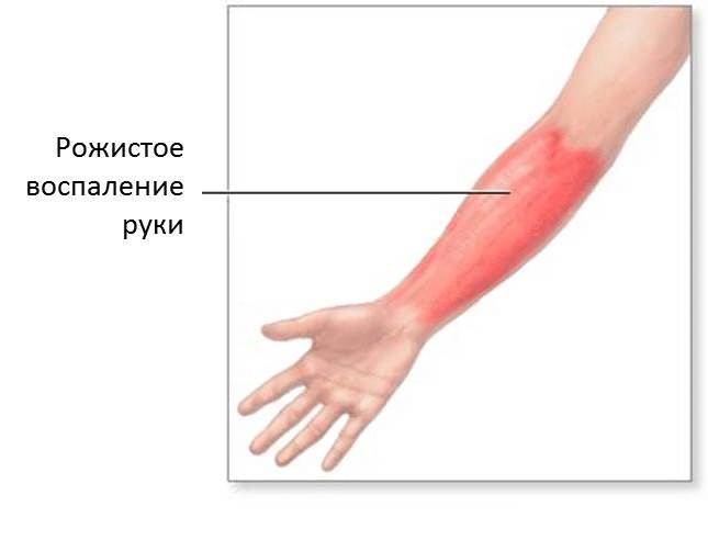 рожа на руке