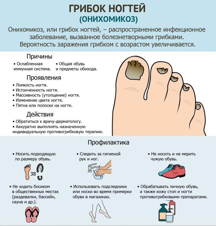 Онихомикоз пальцев на ноге