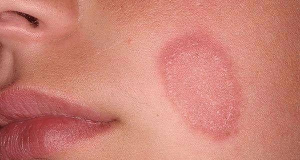 розовый лишай на лице
