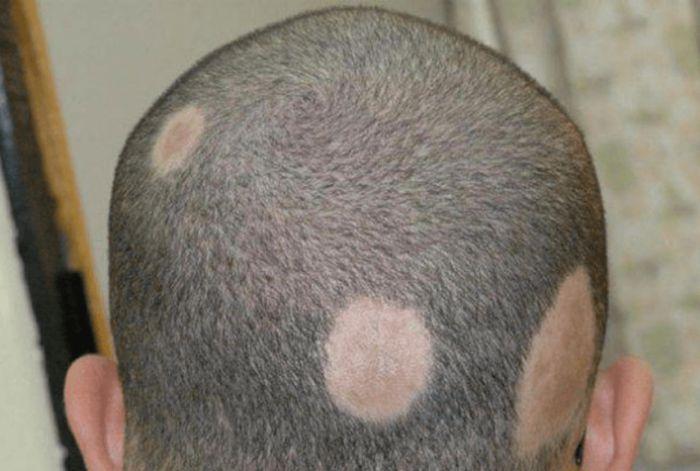 стригущий лишай на волосистой части головы