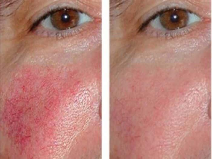 как выглядит куеероз до и после лечения