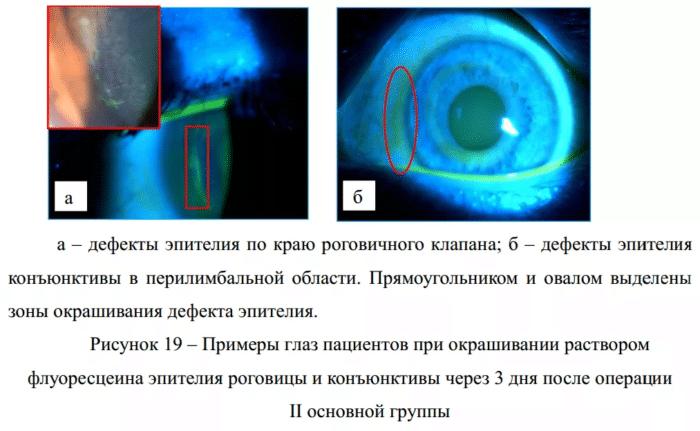 примеры глаз пациентов
