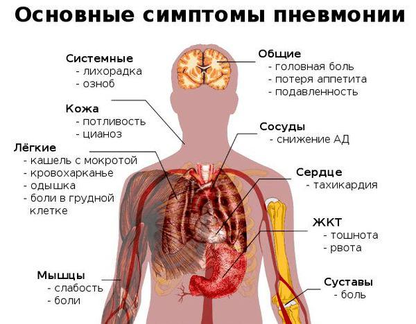 Как выявить воспаление легких у взрослого человека