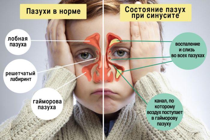 Виды гайморита у взрослых и их основные симптомы